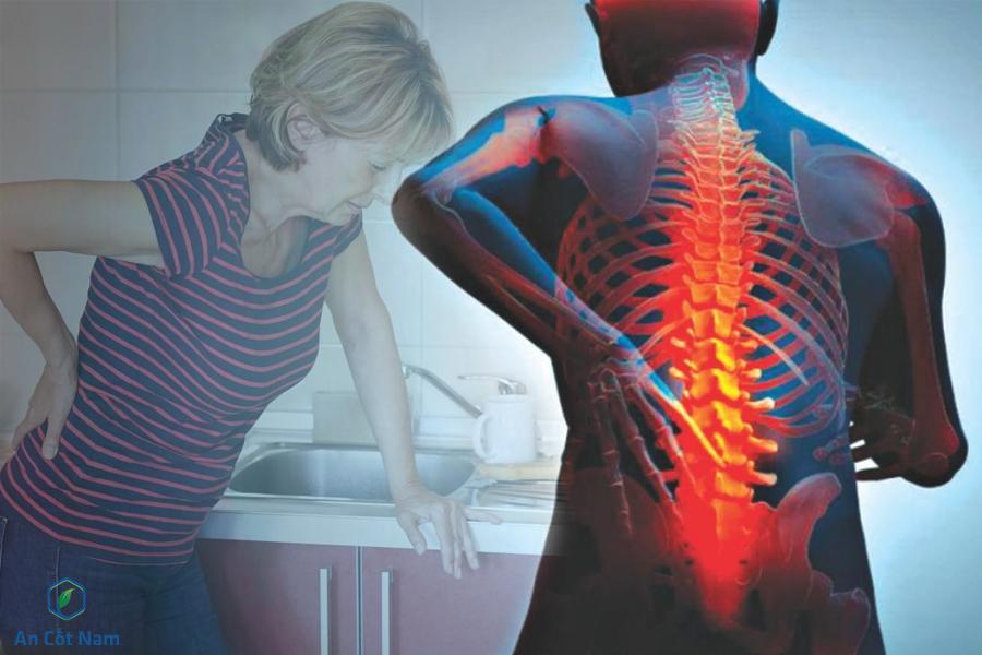 Thoái hóa cột sống vùng lưng giúp bạn khó khom người, vận động